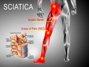 One Of My Favourite Websites That Review Sciatica Online Programs